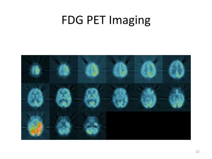 FDG PET Imaging