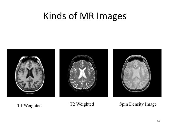 Kinds of MR Images