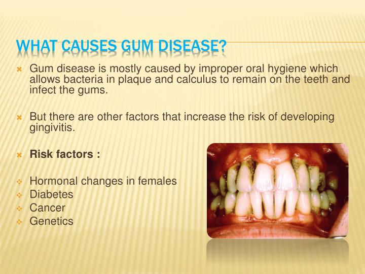 Gum disease is mostly caused by improper oral hygiene which allows bacteria in plaque and calculus to remain on the teeth and infect the gums.