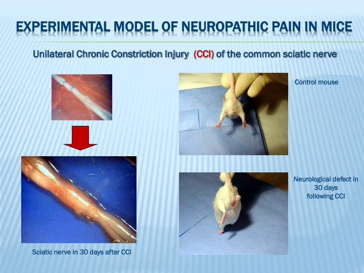 Experimental model of neuropathic pain in mice