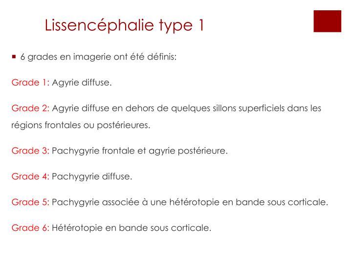 Lissencéphalie type 1