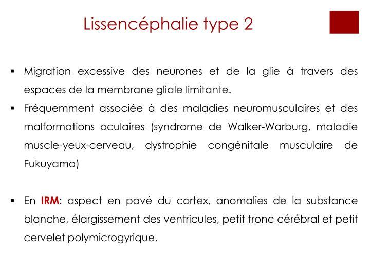 Lissencéphalie type 2