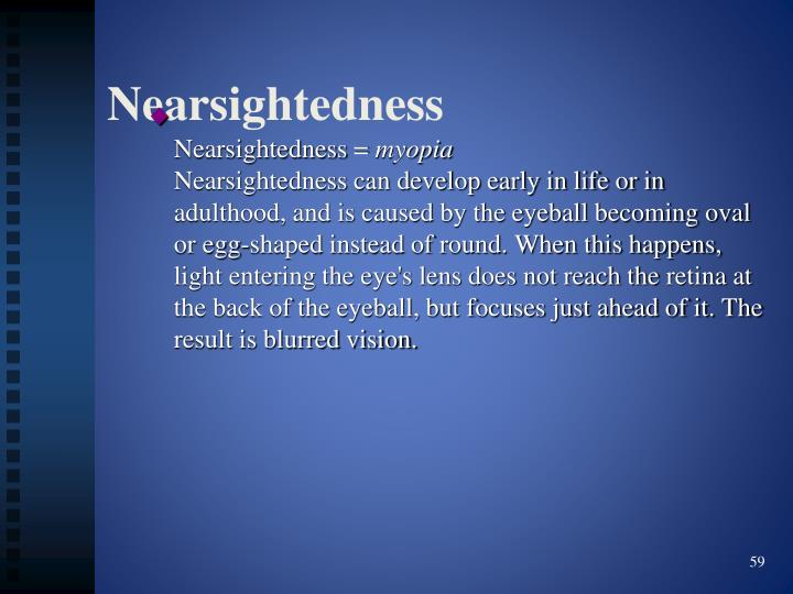Nearsightedness