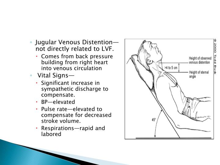 Jugular Venous Distention—not directly related to LVF.