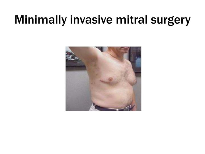 Minimally invasive mitral surgery