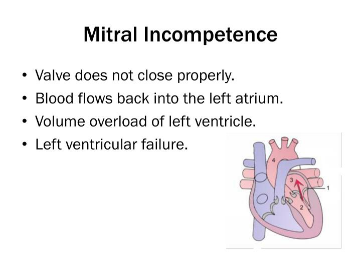 Mitral Incompetence