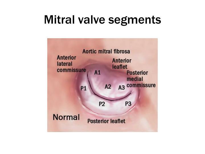 Mitral valve segments