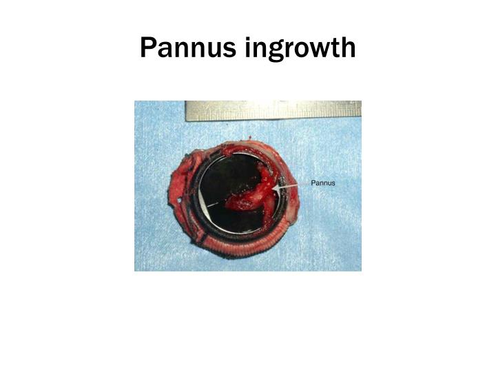 Pannus ingrowth