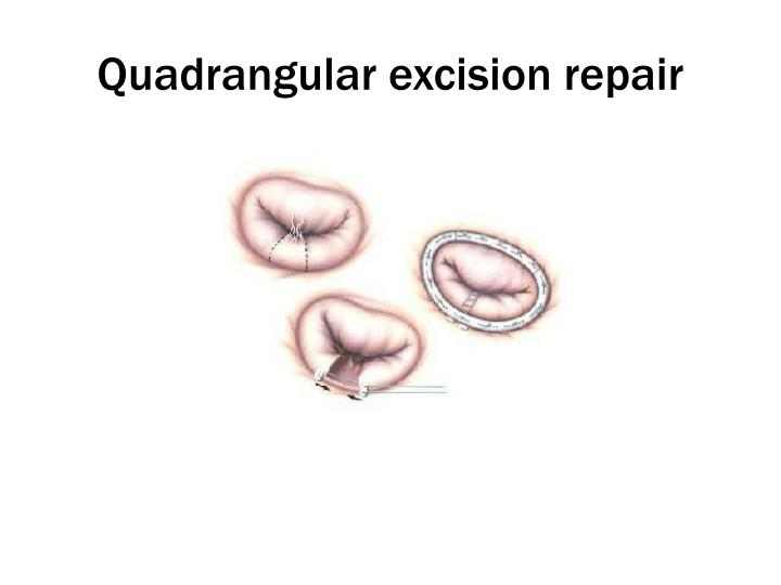 Quadrangular excision repair