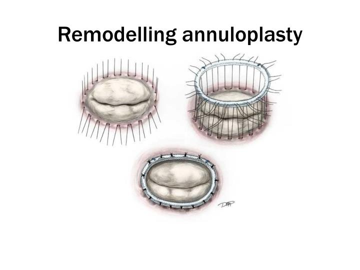 Remodelling annuloplasty