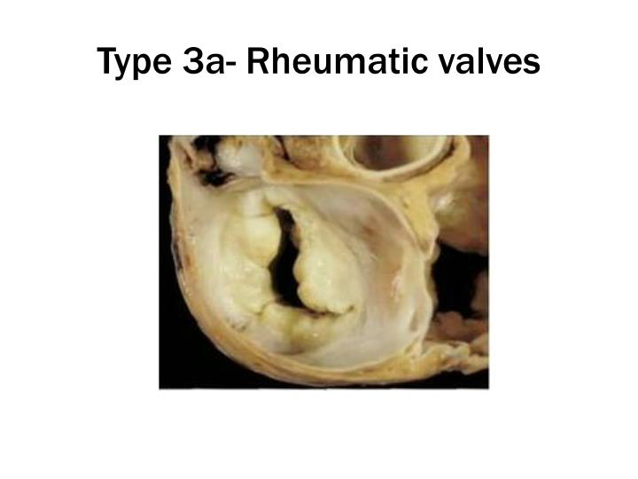 Type 3a- Rheumatic valves