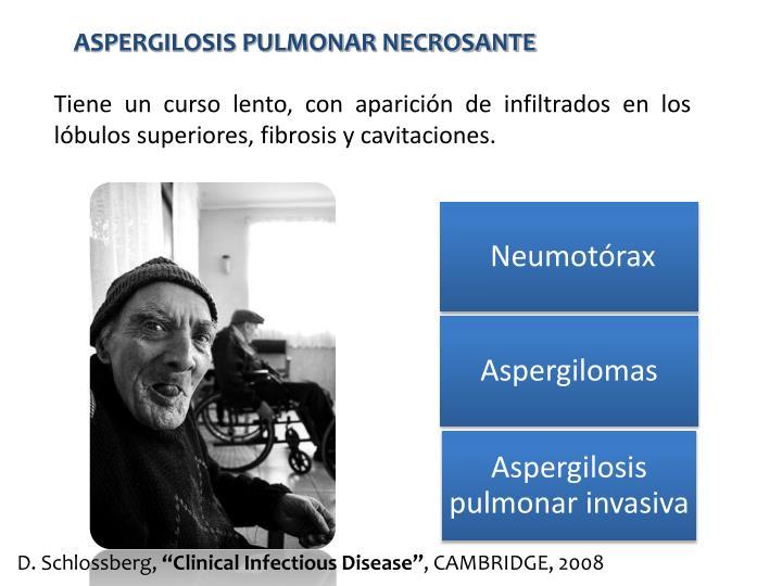 ASPERGILOSIS PULMONAR NECROSANTE