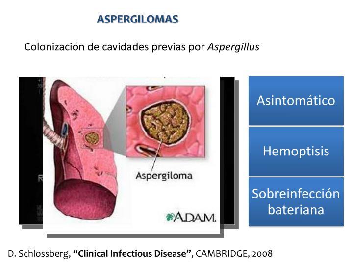 ASPERGILOMAS