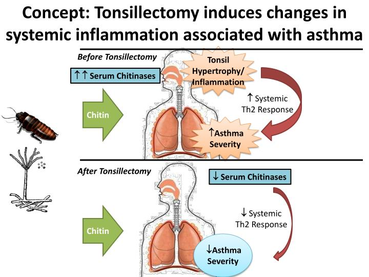Concept: Tonsillectomy induces changes in systemic inflammation associated with asthma