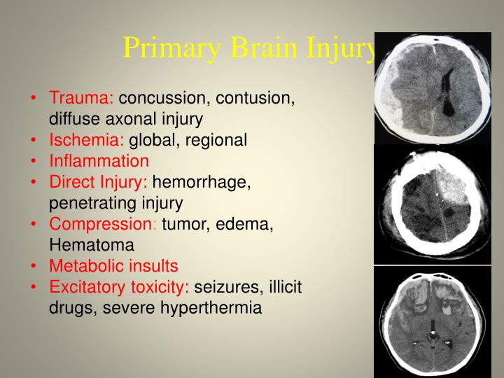 Primary Brain Injury