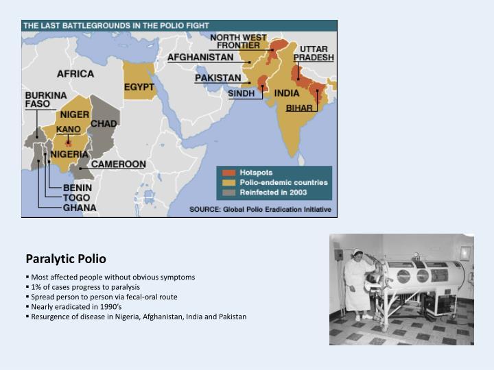Paralytic Polio