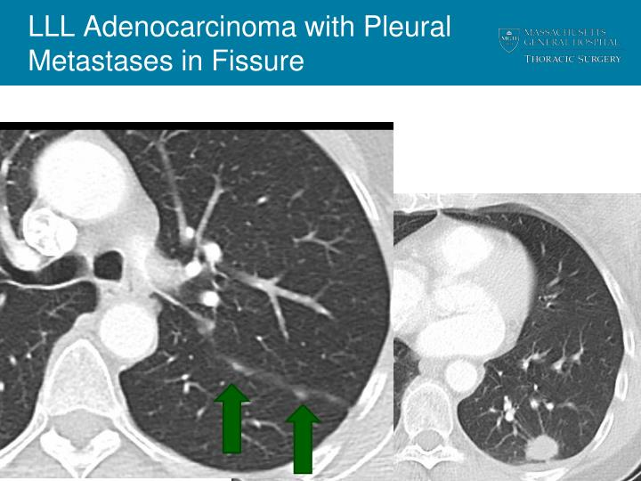 LLL Adenocarcinoma with Pleural Metastases in Fissure