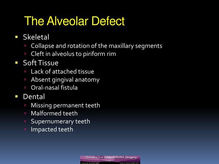 The Alveolar Defect