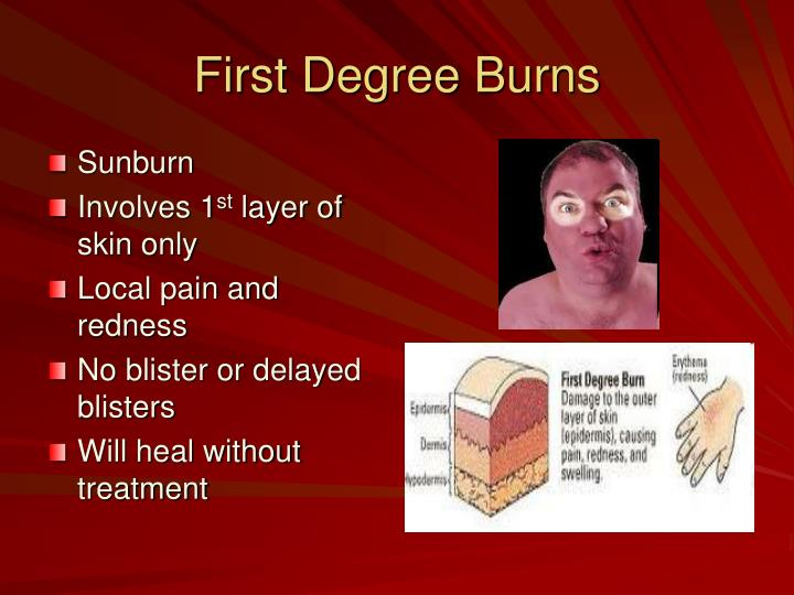 First Degree Burns