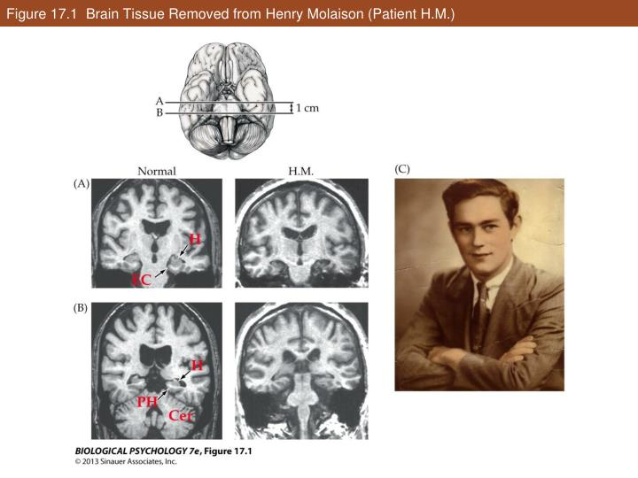 Figure 17.1  Brain Tissue Removed from Henry Molaison (Patient H.M.)