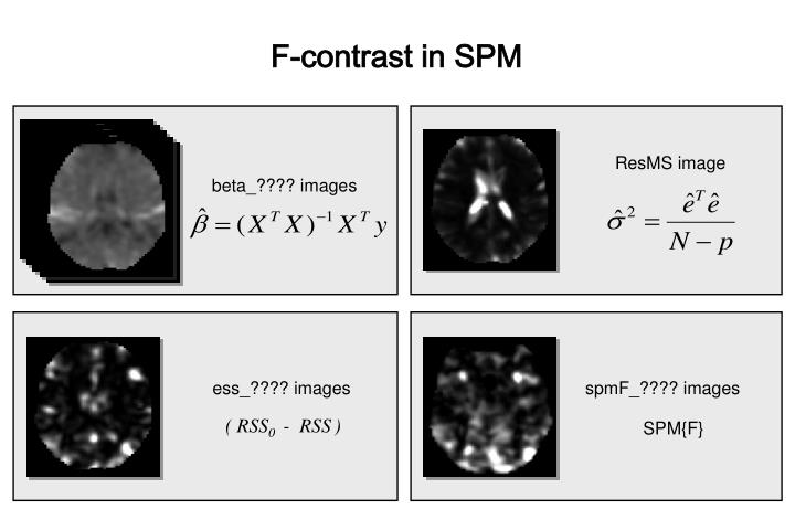 F-contrast in SPM
