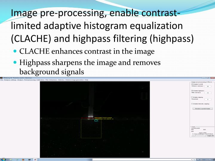 Image pre-processing, enable contrast-limited adaptive histogram equalization (CLACHE) and highpass filtering (highpass)