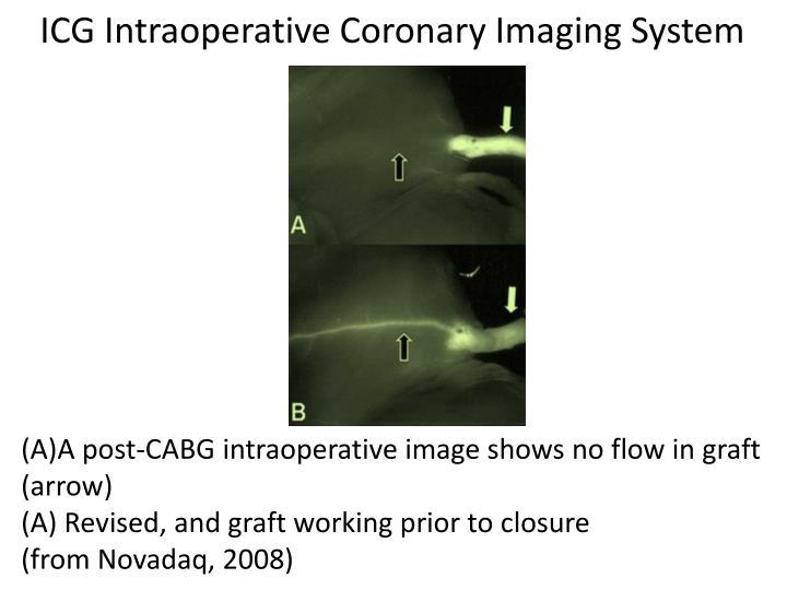 ICG Intraoperative Coronary Imaging System