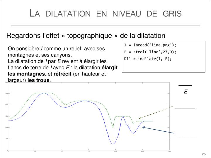 La dilatation