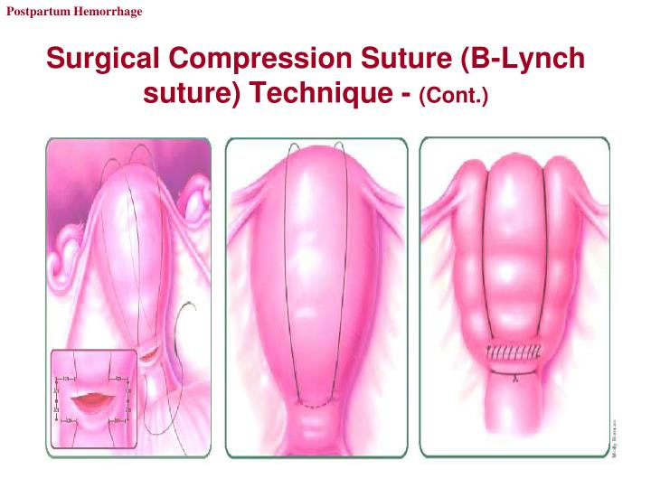 Surgical Compression Suture (B-Lynch suture) Technique -