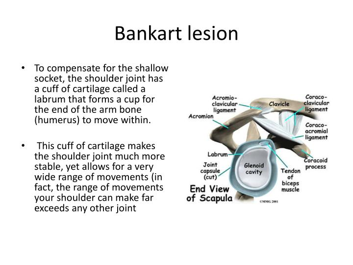 Bankart