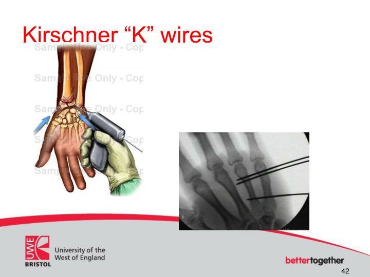 """Kirschner """"K"""" wires"""