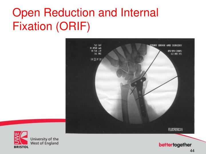 Open Reduction and Internal Fixation (ORIF)