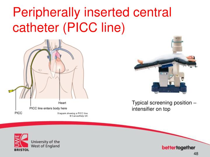 Peripherally inserted central catheter (PICC line)