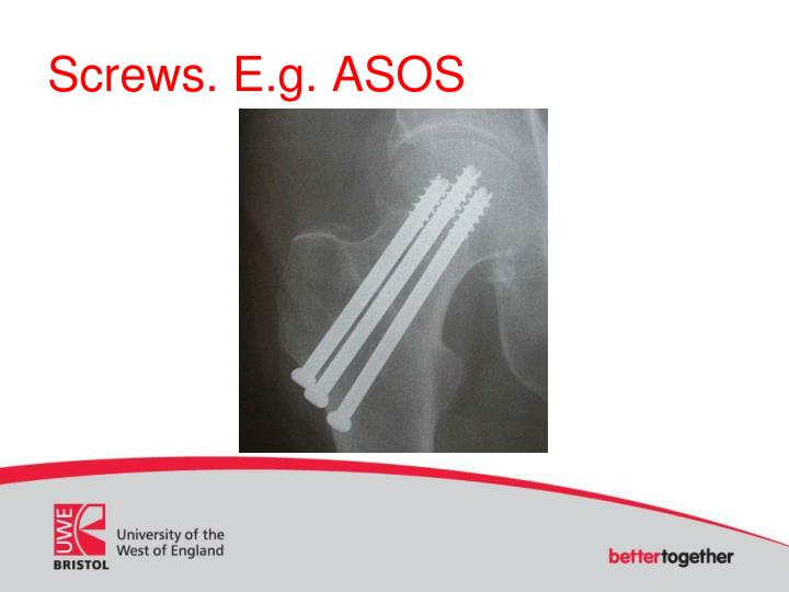 Screws. E.g. ASOS