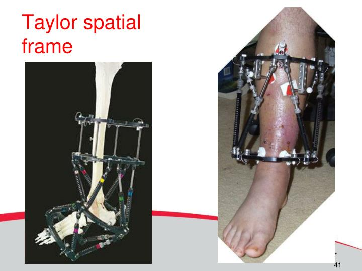 Taylor spatial frame
