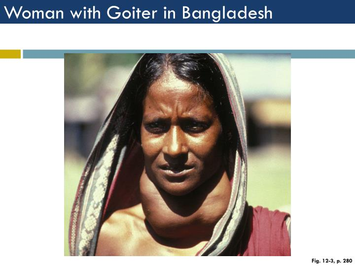 Woman with Goiter in Bangladesh