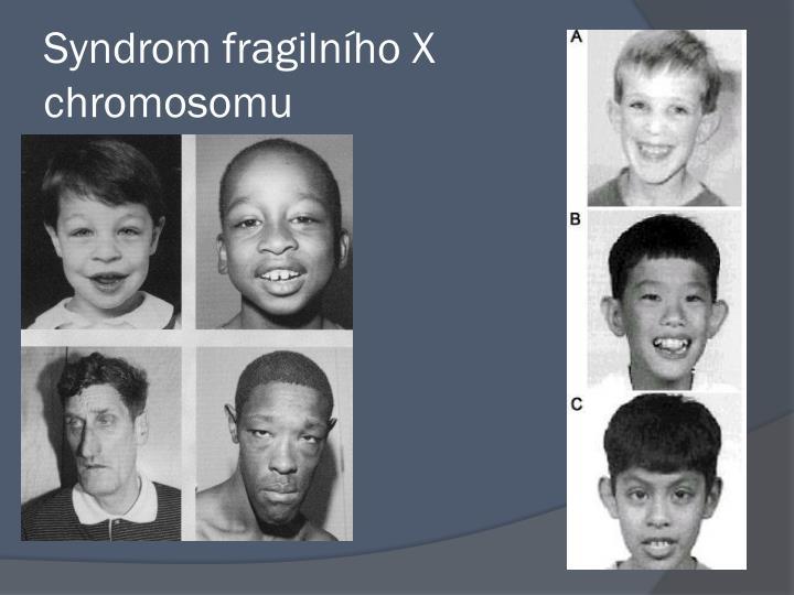Syndrom fragilního X chromosomu