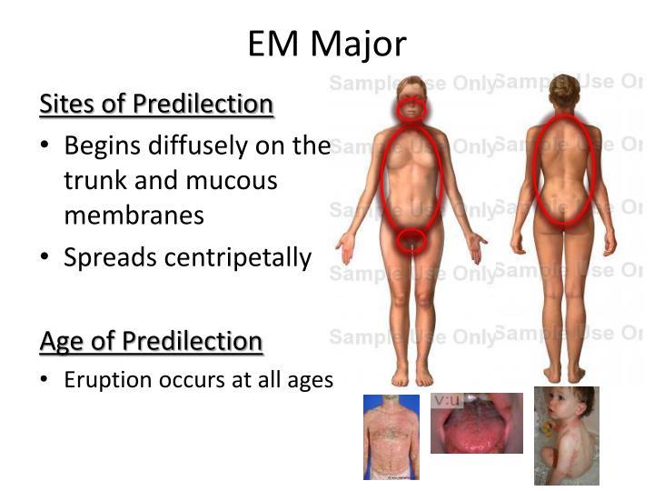 EM Major