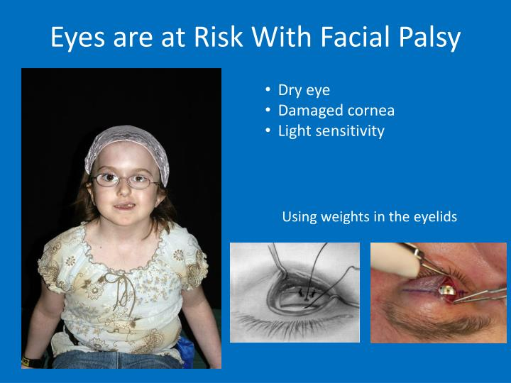 Eyes are at Risk With Facial Palsy