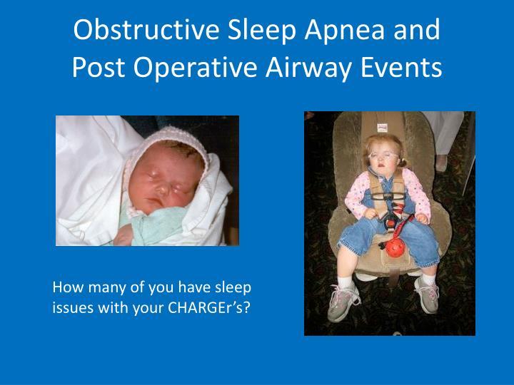 Obstructive Sleep Apnea and
