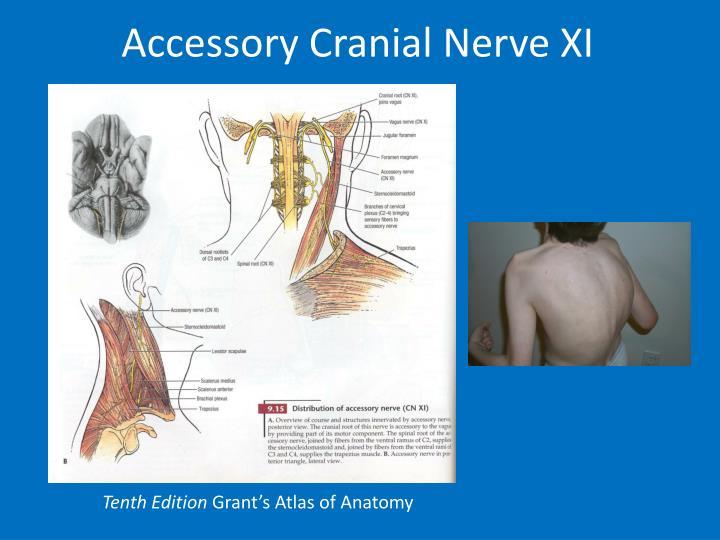 Accessory Cranial