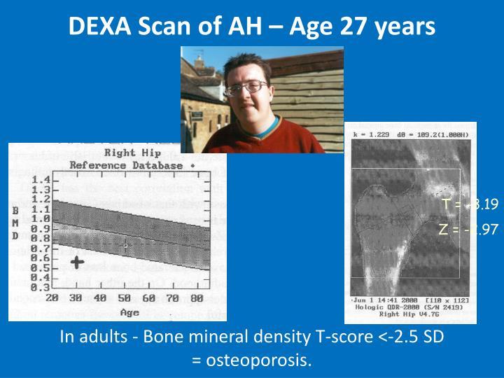 DEXA Scan of AH – Age 27 years