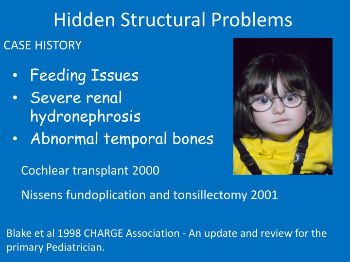 Hidden Structural Problems