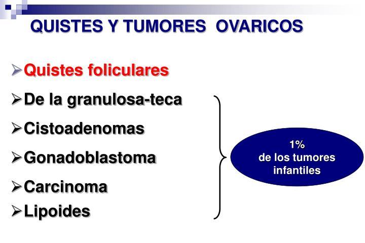 QUISTES Y TUMORES  OVARICOS