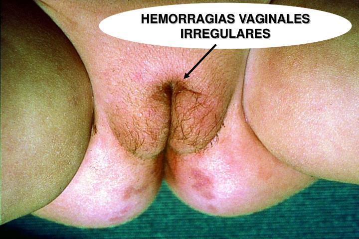 HEMORRAGIAS VAGINALES