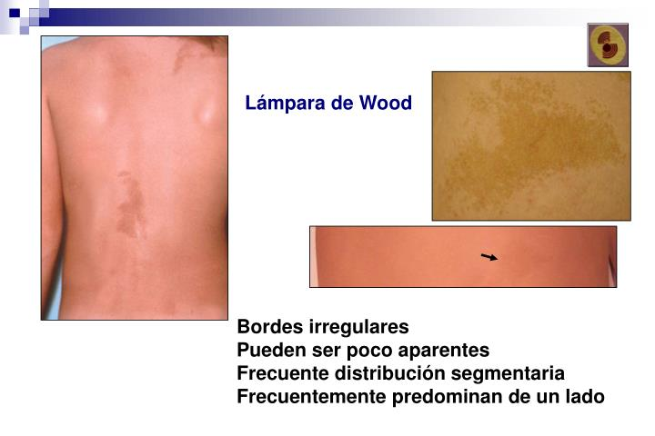 Lámpara de Wood