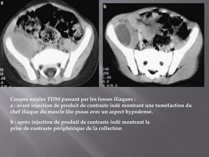 Coupes axiales TDM passant par les fosses iliaques :