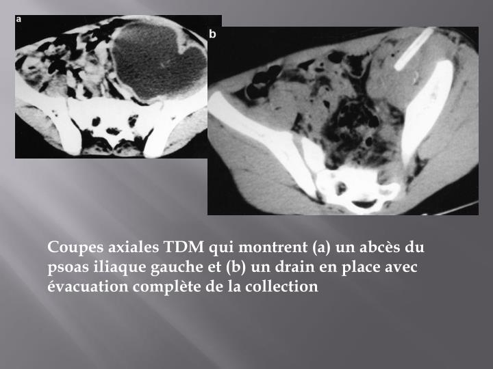 Coupes axiales TDM qui montrent (a) un abcès du