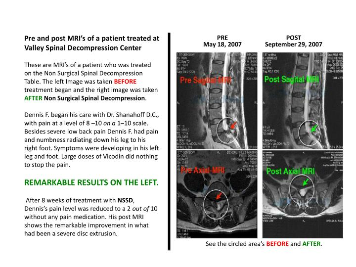 Pre and post MRI's of a patient treated at