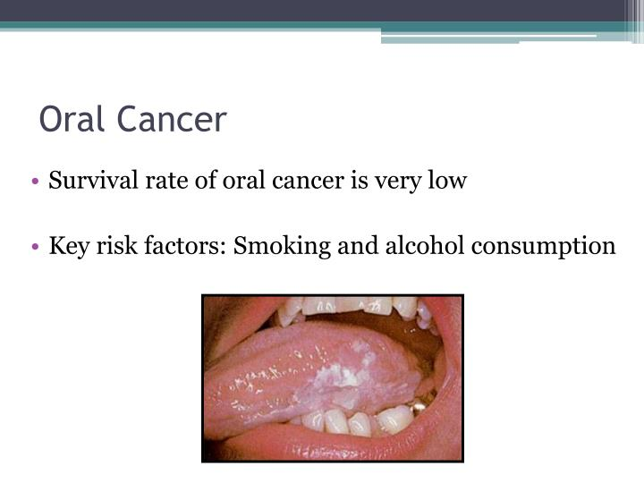 Oral cancer from alcohol pictures to pin on pinterest for Floor of mouth cancer